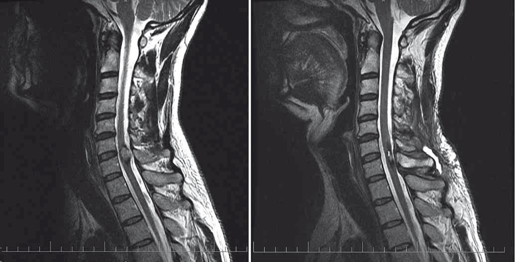 Pacient s intramedulárním kavernomem C6/7 před resekcí (vlevo) a po resekci (vpravo). Fig.1. Patient harbouring intramedullary cavernoma at C6/7 level. Pre-op (left) and post-op (right) MRI scans.
