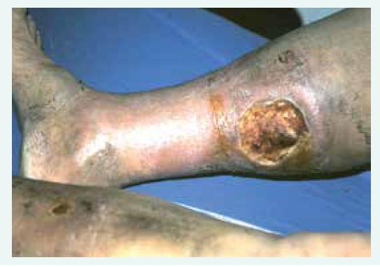 Obr. 1. 2. Bércový vřed arteriální etiologie, defekt je nápadně ostře ohraničený