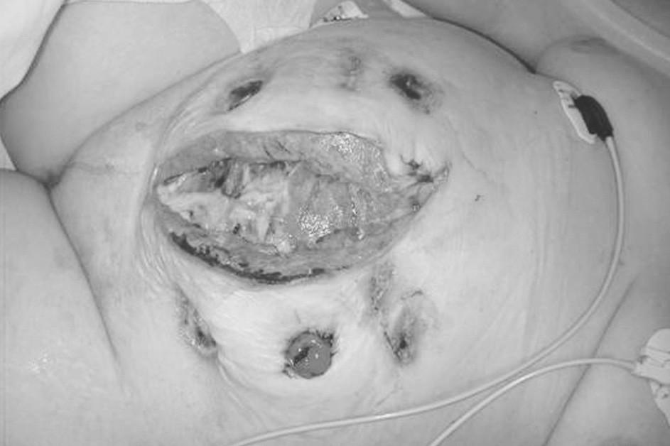 Rána po chirurgické nekrektomii