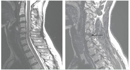 MR vyšetrenie C chrbtice, A – synostóza C4-5, B – foraminálna hernia discus itervertebralis C 5-6 vľavo.