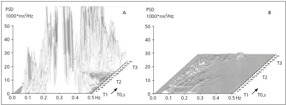 """Záznam vyšetření SAHRV při zkoušce leh-stoj-leh u zdravých osob v různých věkových kategoriích (graf 1a: 26 let, graf 1b: 74 let), demonstrující fyziologický pokles parametrů variability srdeční frekvence s věkem. Na ose X jsou znázorněny jednotlivé frekvence, na nichž dochází k oscilaci záznamu, na ose Yjsou pak hodnoty výkonové spektrální hustoty (tedy """"míry kolísání záznamu"""" na dané frekvenci) a osa z znázorňuje časový průběh záznamu, kde intervaly T1–3 představují jednotlivé fáze vyšetření s měnící se polohou pacienta (tedy Leh 1-Stoj-Leh 2). Na záznamech jsou patrné fyziologické změny parametrů SAHRV v jednotlivých polohách – tedy iniciální vyšší aktivita v oblasti vysokofrekvenčního pásma při úvodní fázi vyšetření vleže (T1), následný pokles vysokofrekvenční a vzestup nízkofrekvenční složky při vyšetření vstoje (T2) a konečně opětovný vzestup vysokofrekvenční a pokles nízkofrekvenční složky v poslední fázi vyšetření (Leh 2: T3)."""