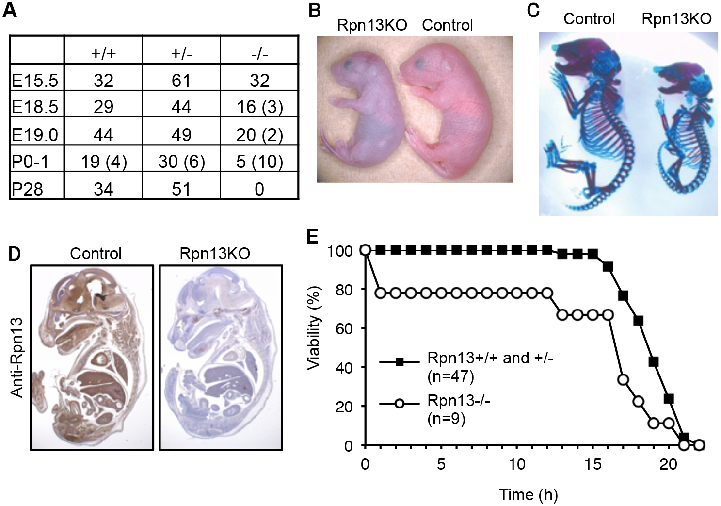 Loss of Rpn13 causes neonatal lethality in mice.