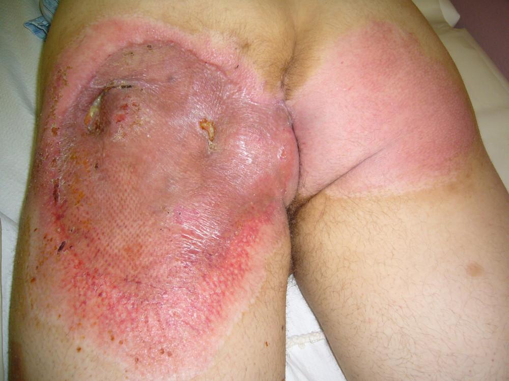 Zhojené měkké tkáně 6 týdnů po úrazu