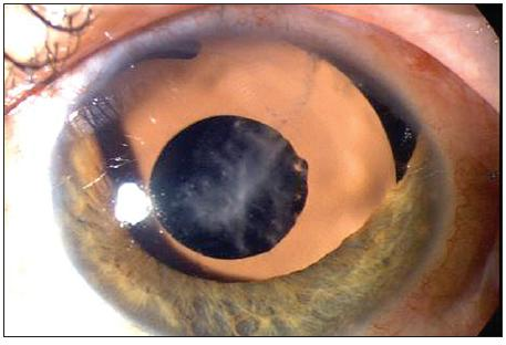 Nález po implantaci hnědé PC IOL Ophtec