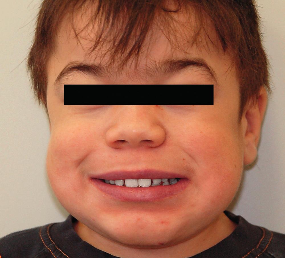Typický vzhled dítěte s mukopolysacharidózou