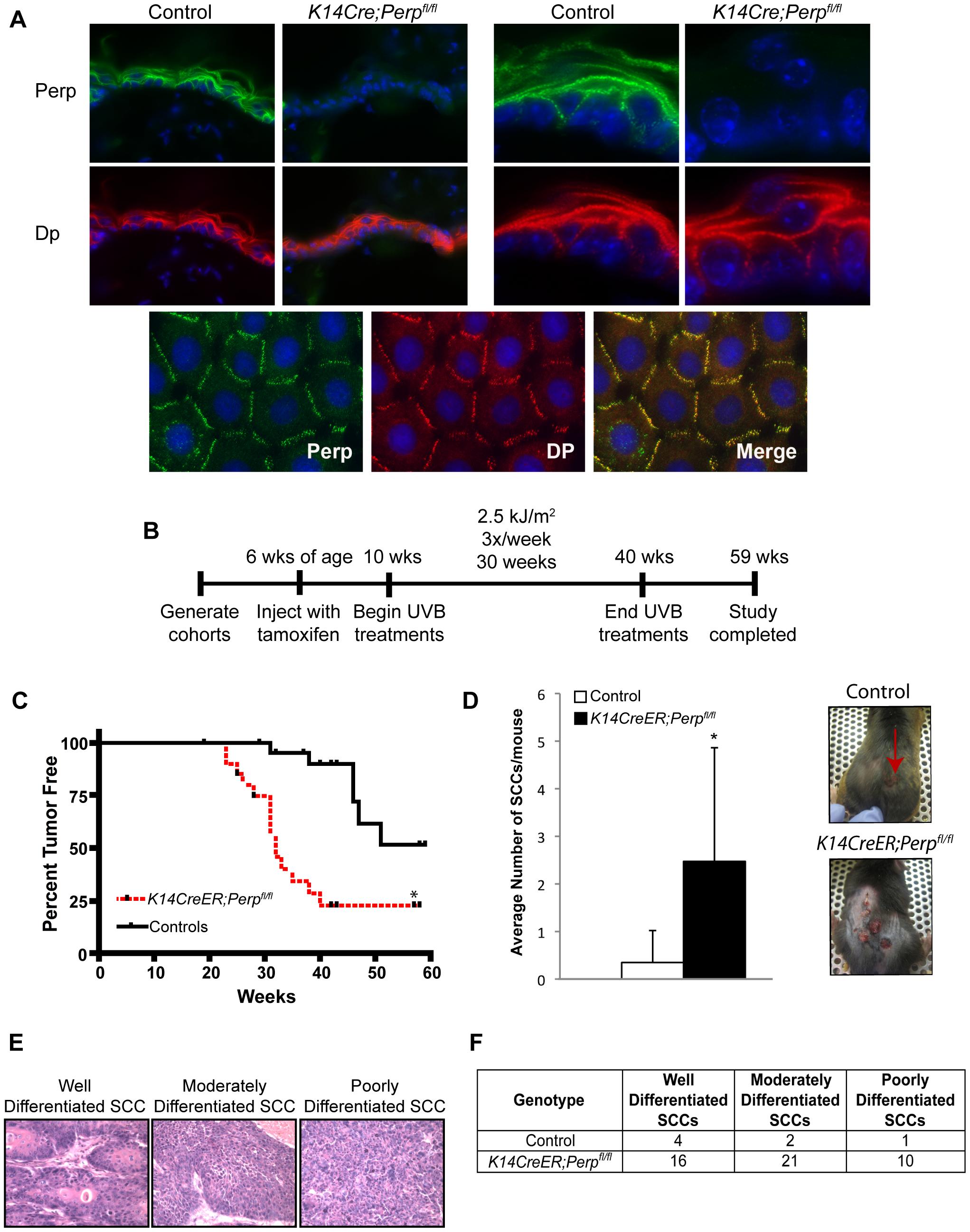 <i>Perp</i>-deficiency promotes tumorigenesis.