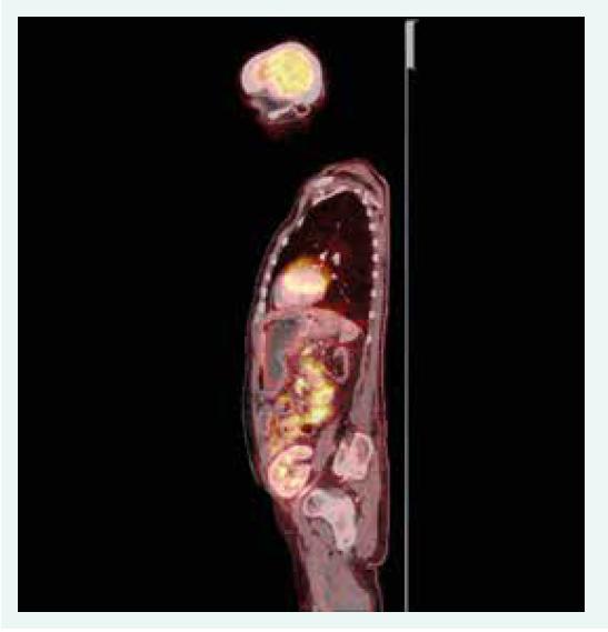 Obr. 1.2. PET/CT sagitální řez. Akumulace radiofarmaka v tenkých kličkách, tračníku a metabolicky aktivní uzliny v retroperitoneu, mezenteriu a mediastinu. Z archivu autorky