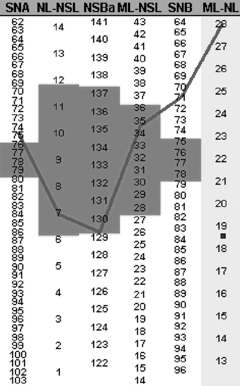 Segnerův-Hasundův box pro kazuistické sdělení 1 (PC Dent). Nejedná se o harmonický typ obličeje, neboť linie, spojující hodnoty kefalometrických úhlů, celá neleží v poli průměrného populačního rozmezí