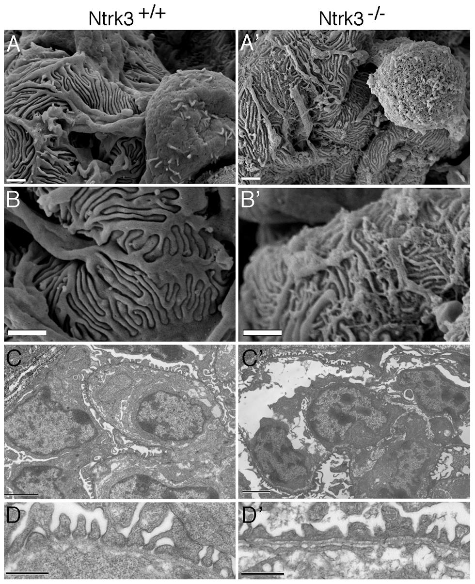 Ultrastructural Analysis of <i>Ntrk3</i> Mutant Kidneys.