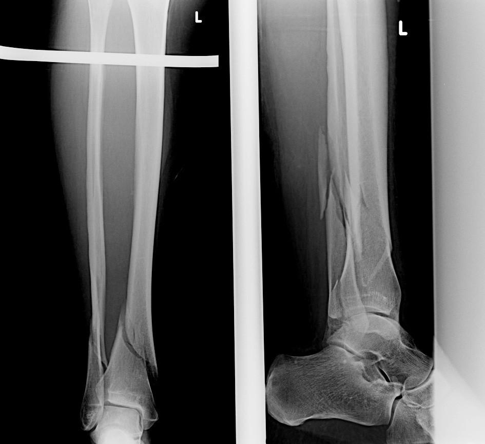 Vstupní rtg recentně po úrazu Fig. 8: Initial X-ray shortly after injury