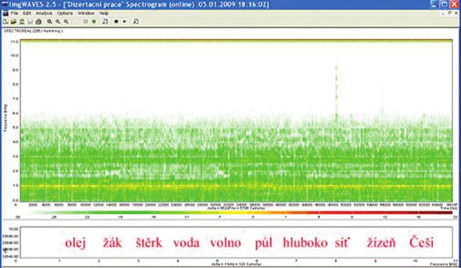 Sonogram slovní audiometrie, dekáda slov, SNR – 20 dB, WN 65 dB.