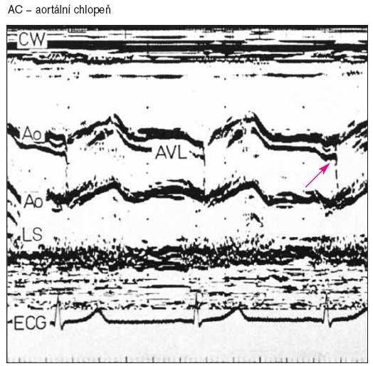 M-mode u pacienta s bikuspidální chlopní aorty ukazuje přemístění linie diastolického uzávěru dopředu (šipka).