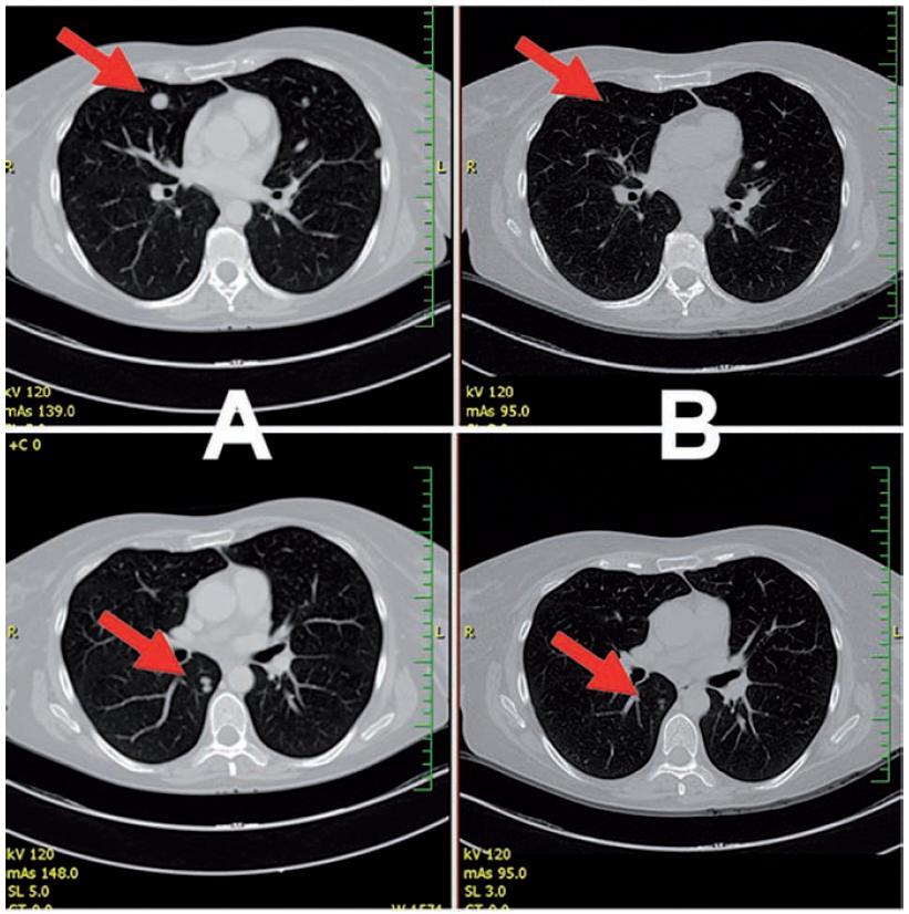 Kompletní regrese plicních metastáz před a po terapii ipilimumabem (a týden 0, B týden 16) v Ct vyšetření
