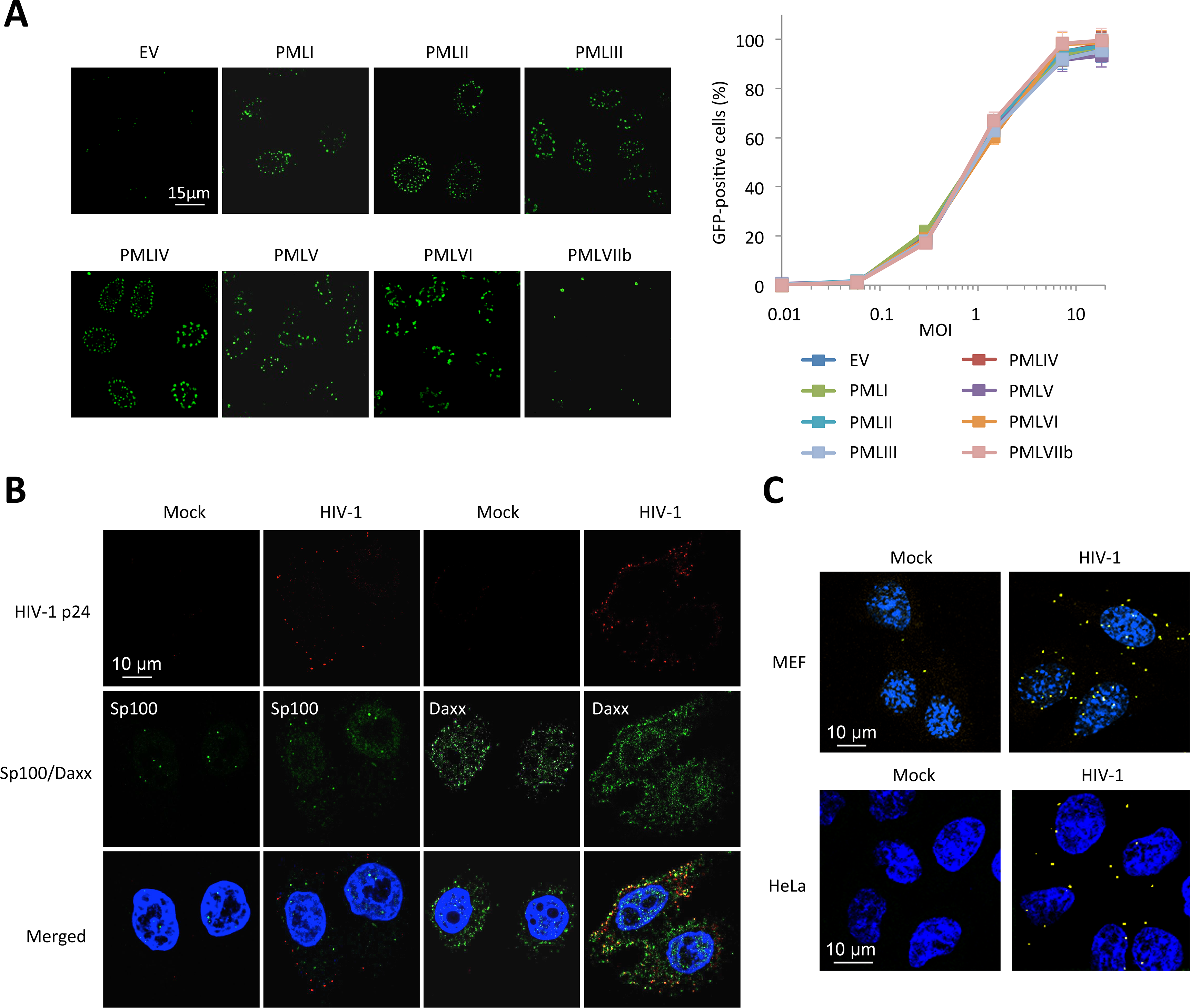 PML is not the main mediator of HIV-1 restriction.