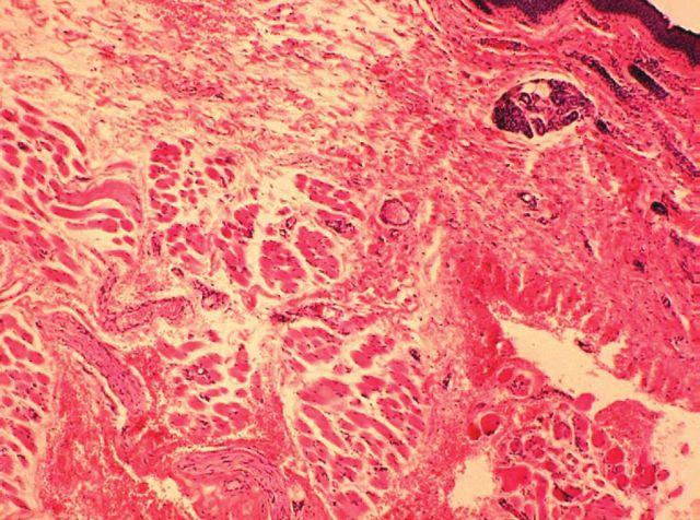 Projizvení víčka při povrchu s nespecifickou granulační tkání a v hloubi se zbytky resorbujícího se hematomu (barvení HE, zvětšení 100x)
