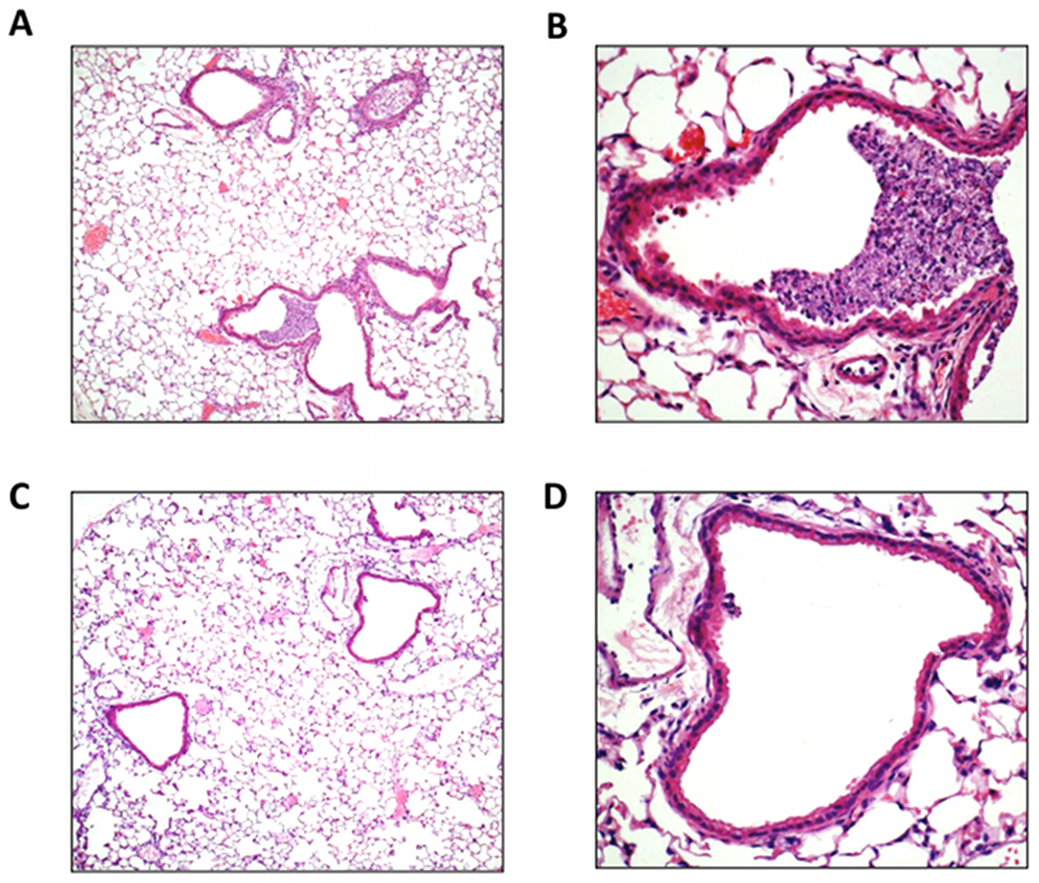 Lung histology in response to H3N2 (X-31) influenza A virus infection.