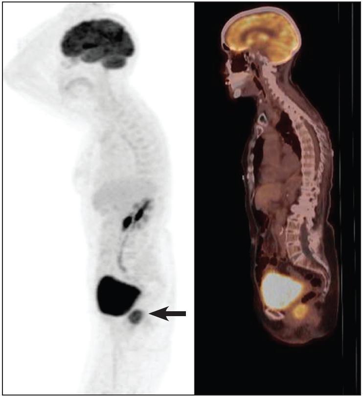 Obr. 2a. PET/CT s FDG, MIP, pohľad zľava. Iniciálne vyšetrenie 9. 11. 2009 potvrdilo izolovaný tumorózny útvar v oblasti rektovaginálneho septa s vysokým glukózovým metabolizmom (SUVmax 9,3).