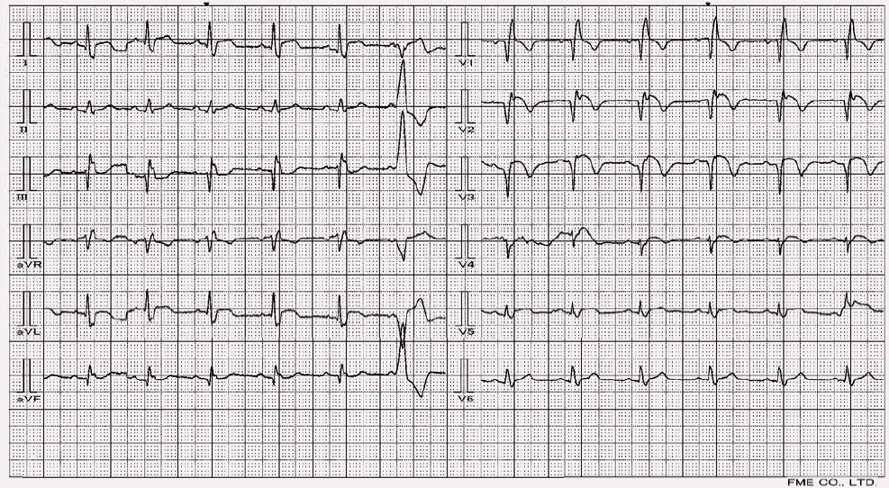 Blok pravého raménka Tawarova a subakutní infarkt myokardu přední stěny.