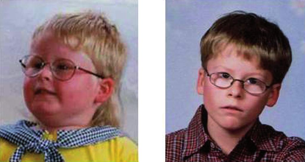 a, b. Chlapec se syndromem Pradera-Williho před léčbou růstovým hormonem (a) a po třech letech léčení (b). Růstový hormon sice neléčí obezitu, ale přispívá k úpravě tělesného složení, zvyšuje fyzickou zdatnost a pomáhá tak k lepší intergraci mezi ostatní děti. Každodenní boj s jídelní obsesí těchto dětí je ale i při léčbě každodenním nelehkým úkolem pro maminky.