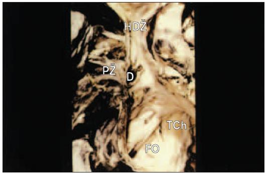 Defekt typu sinus venosus. Defekt je uložen vysoko ve stěně horní duté žíly a pravá plicní žíla vyúsťuje do pravé síně přes defekt.