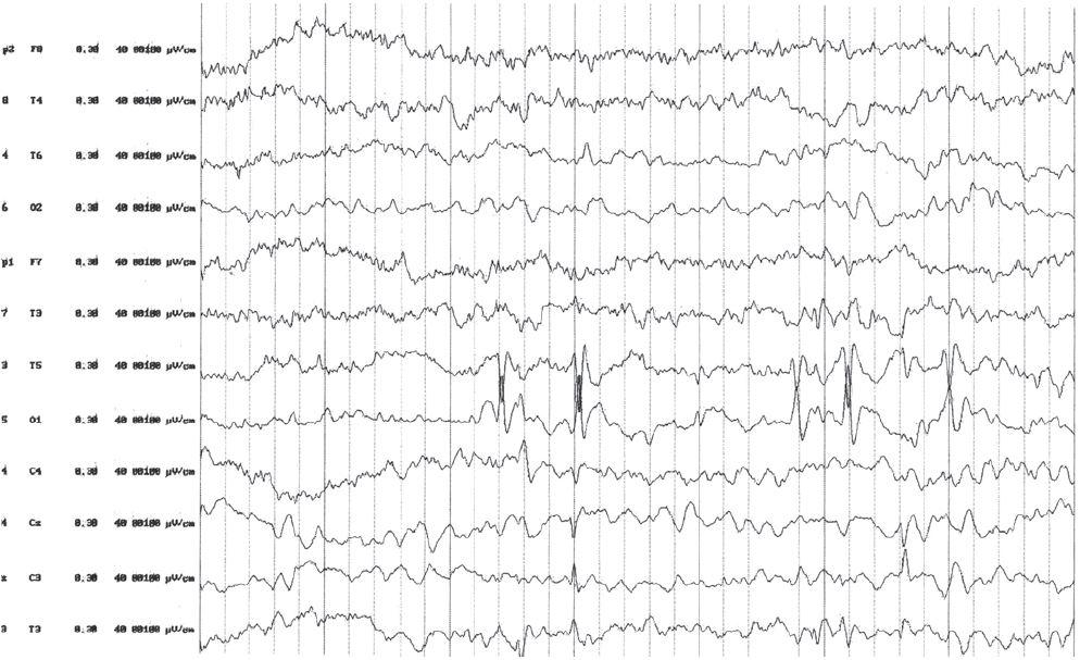 EEG pri liečbe ACTH. Výrazné zlepšenie spánkového EEG zápisu. Pretrváva ložisková epileptiformná aktivita temporálne vľavo s vymiznutím generalizácie.