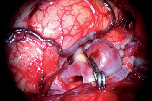 Obr. 4a) Stav po zaklipování krčku vaku.