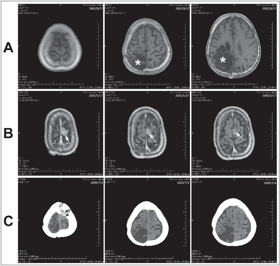 Obr. 2. Kazuistika 2. a) MR dokumentovaný stav po operaci astrocytomu WHO gr. II (hvězdička). b) MR vyšetření s odstupem s nálezem meningeomu (šipka). c) Kontrolní CT vyšetření po exstirpaci meningeomu.