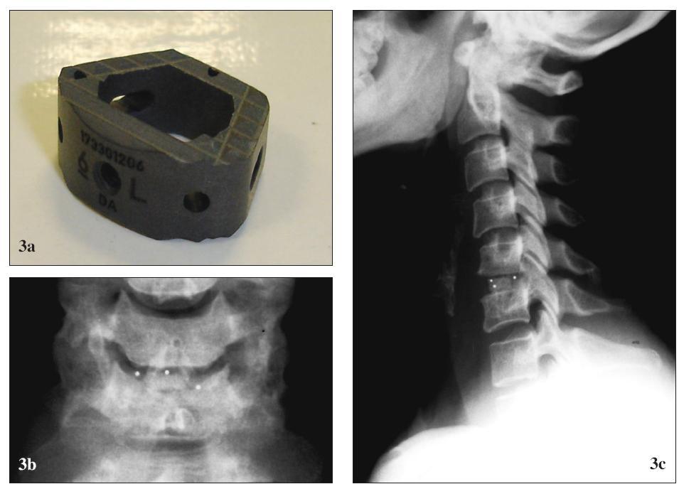 Karbónová náhrada medzistavcovej platničky Brantigan® (De PuySpine). (a) pred implantáciou, (b) po implantácii, RTG (b1) predná a (b2) bočná projekcia