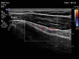 Pravý ramenní kloub, longitudinální zobrazení šlachy dlouhé hlavy bicepsu s okolní tenosynovitidou. Vyšetření proběhlo na přístroji Philips iU22 povrchovou lineární sondou 12 MHz. Otištěno s laskavým svolením MUDr. Andrey Šprlákové-Pukové, Ph.D.