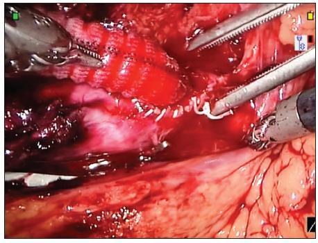 Centrální anastomóza na abdominální aortě Fig. 4. Proximal anastomosis of abdominal aorta