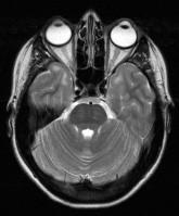 Pacientka s DM 1, 25 let. V axiálních FLAIR (a) a T2 vážených (b) obrazech jsou patrná výrazná ložiska zvýšeného signálu v subkortikální bílé hmotě anteromediálních částí obou temporálních laloků (šipky).