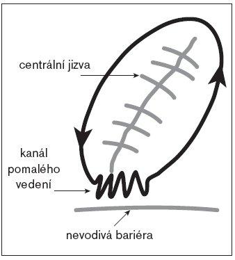 Schéma okruhu reentry okolo centrálně uložené jizvy po atriotomii. Ideálním místem k cílení katetrizační ablace je kanál pomalého vedení mezi jizvou a přilehlou anatomickou bariérou.