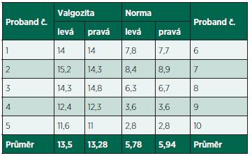 Hodnoty T-F úhlu každého probanda měřené pomocí metody Čulíka a Maříka (2002).