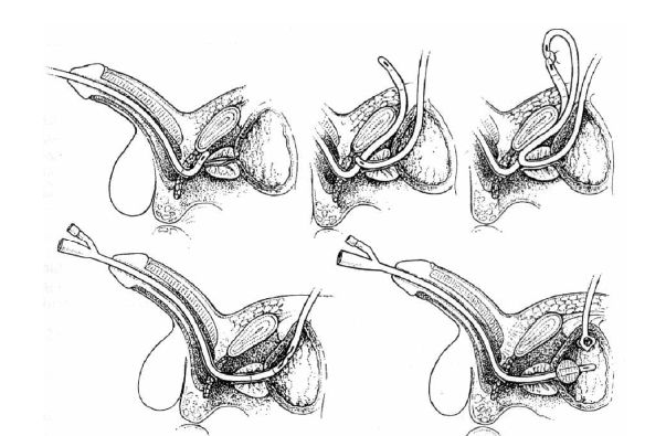 Realignment uretry Fig. 2. Urethral realignment