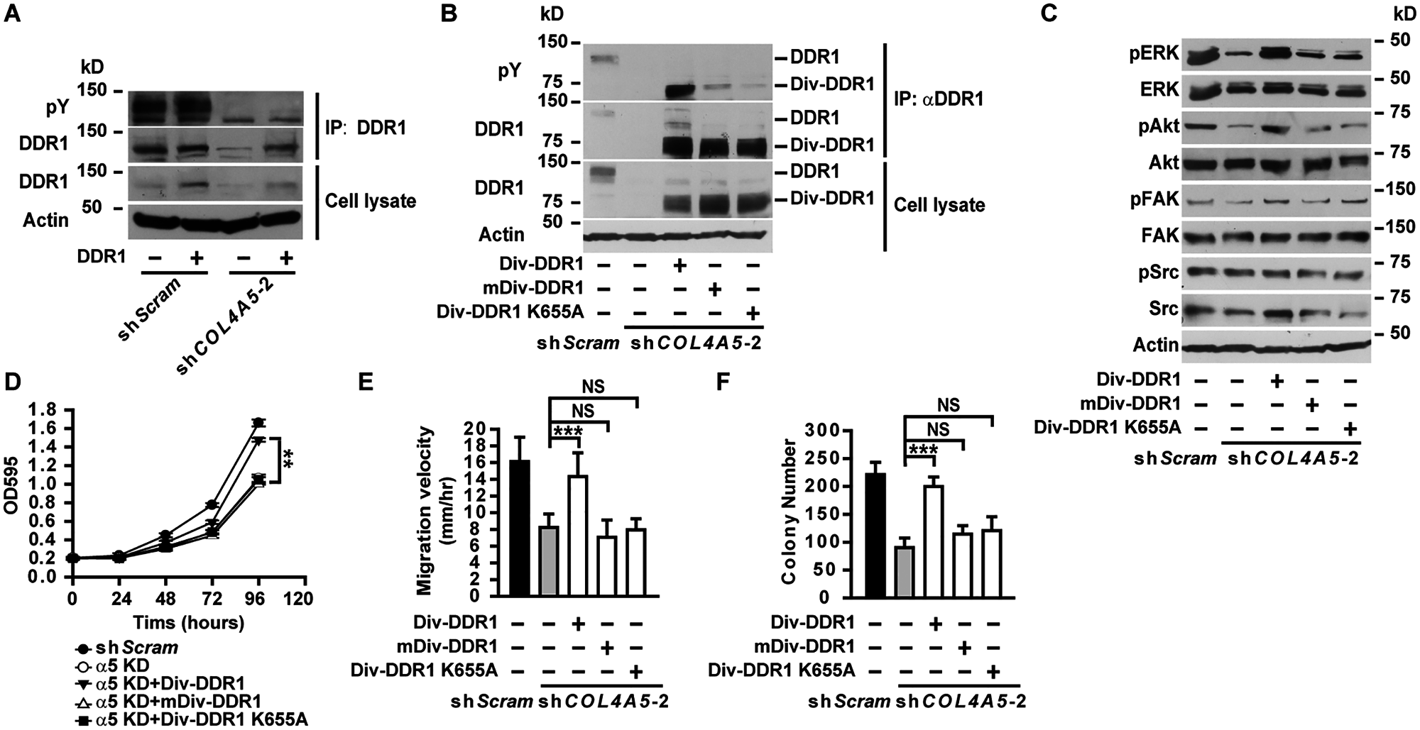 Constitutively active DDR1 rescued the defects of α5(IV)-deficient lung cancer cells.