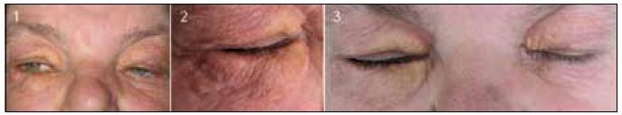 Obr. 1–3. Postižení očních víček xantogranulomem, žlutooranžová barva a indurace obou víček více vpravo.