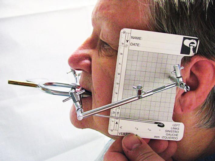 Nasazený Gerberův obličejový oblouk s grafickým registračním zařízení zaznamenávajícím úhel a trajektorii pohybu kondylu při protruzním pohybu (foto autoři)