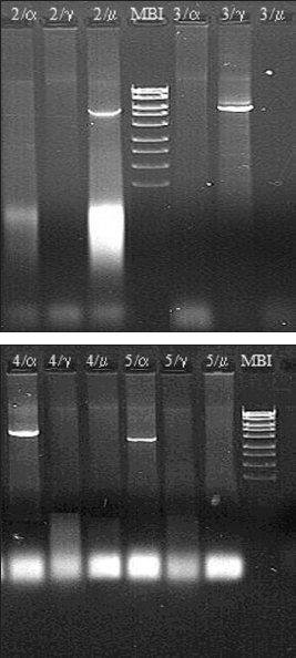 a. a b. Molekulárně biologická diagnostika Burkittova lymfomu – metoda long distance PCR (materiál Centra molekulární biologie a genové terapie Interní hematoonkologické kliniky, zpracovala A. Marečková).  Metoda umožňuje detekovat nejčastější translokaci u Burkittova lymfomu t(8;14)(q24;q32). Diagnostika je založena na třech nezávislých PCR reakcích s jedním společným primerem navrženým do 2. exonu genu c-myc a třemi primery navrženými do konstantních oblastí Cα, Cμ a Cγ genu pro IgH.