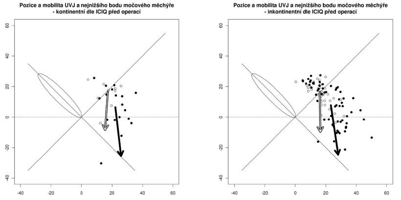 Pozice a pohyblivost UVJ (světlá šipka) a bodu N ( tmavá šipka) u žen kontinentních a inkontinentních před operací