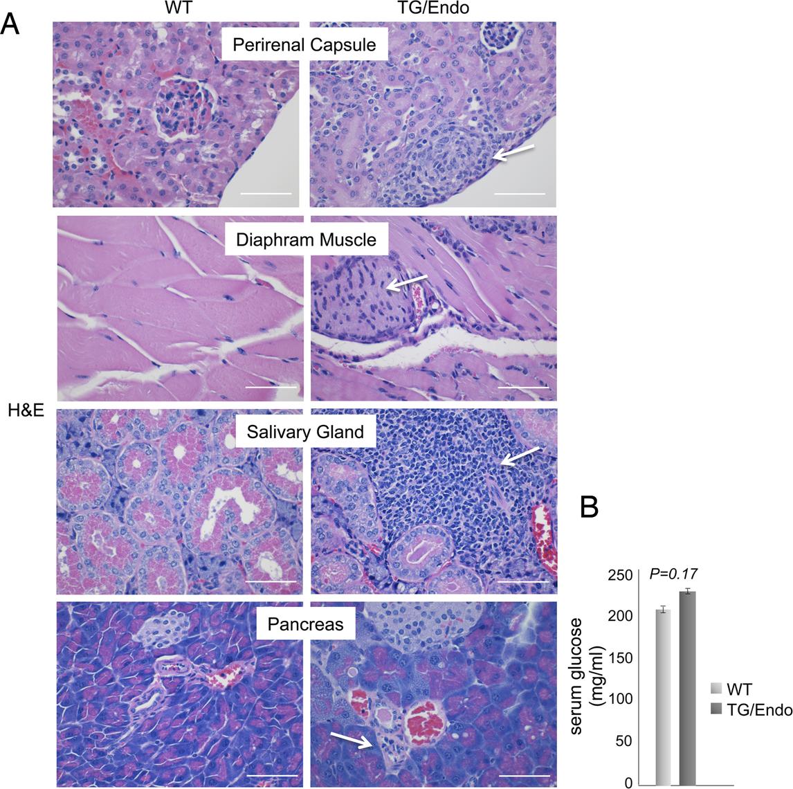 Systemic perineurinal proliferation.