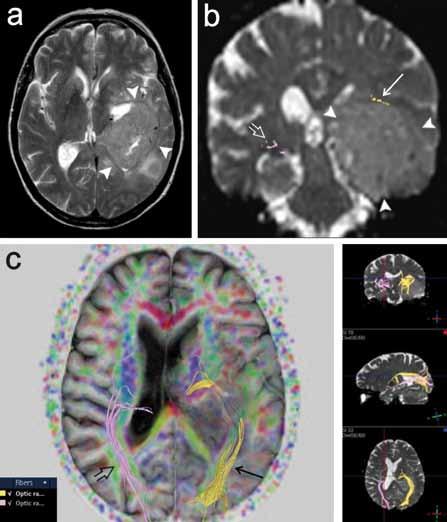 Pacientka s tumorózní expanzí vlevo (gliom gr. III), u níž bylo provedeno předoperační DTI vyšetření za účelem posouzení průběhu levostranné optické dráhy. a) T2 vážený obraz v axiální rovině, tumor má intenzity signálu blízké šedé hmotě mozku (plné šipky). b) Rekonstrukce obou optických drah na průřezu v koronární rovině. Vlevo je dobře patrno odtlačení dráhy kraniálně (šipka), vpravo optická radiace v obvyklém průběhu (otevřená šipka). c) Projekce obou optických drah v různých rovinách, vlevo je zřetelné odtlačení dráhy.