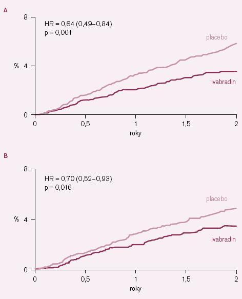 Kaplan– Meierovy křivky výskytu některých kardiovaskulárních příhod u podskupiny nemocných se vstupní klidovou srdeční frekvenci ≥ 70 tepů/ min. A – hospitalizace pro infarkt myokardu; B – koronární revaskularizace.