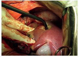 Termální destrukce povrchové metastázy S6 jater Fig. 5: Thermal destruction of the surface liver metastasis at S6