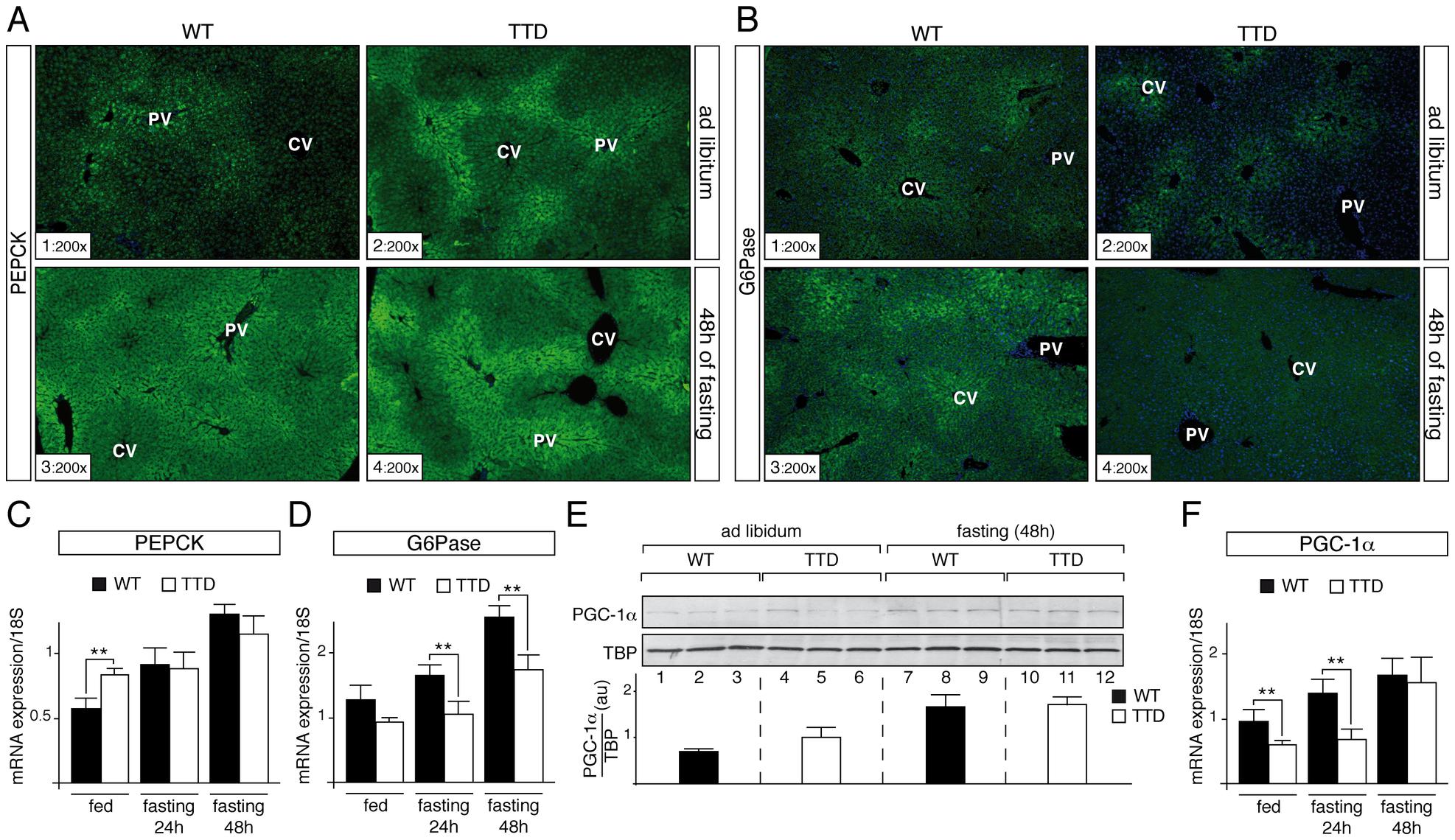 Dysregulation of gluconeogenesis-induced proteins in TTD liver.