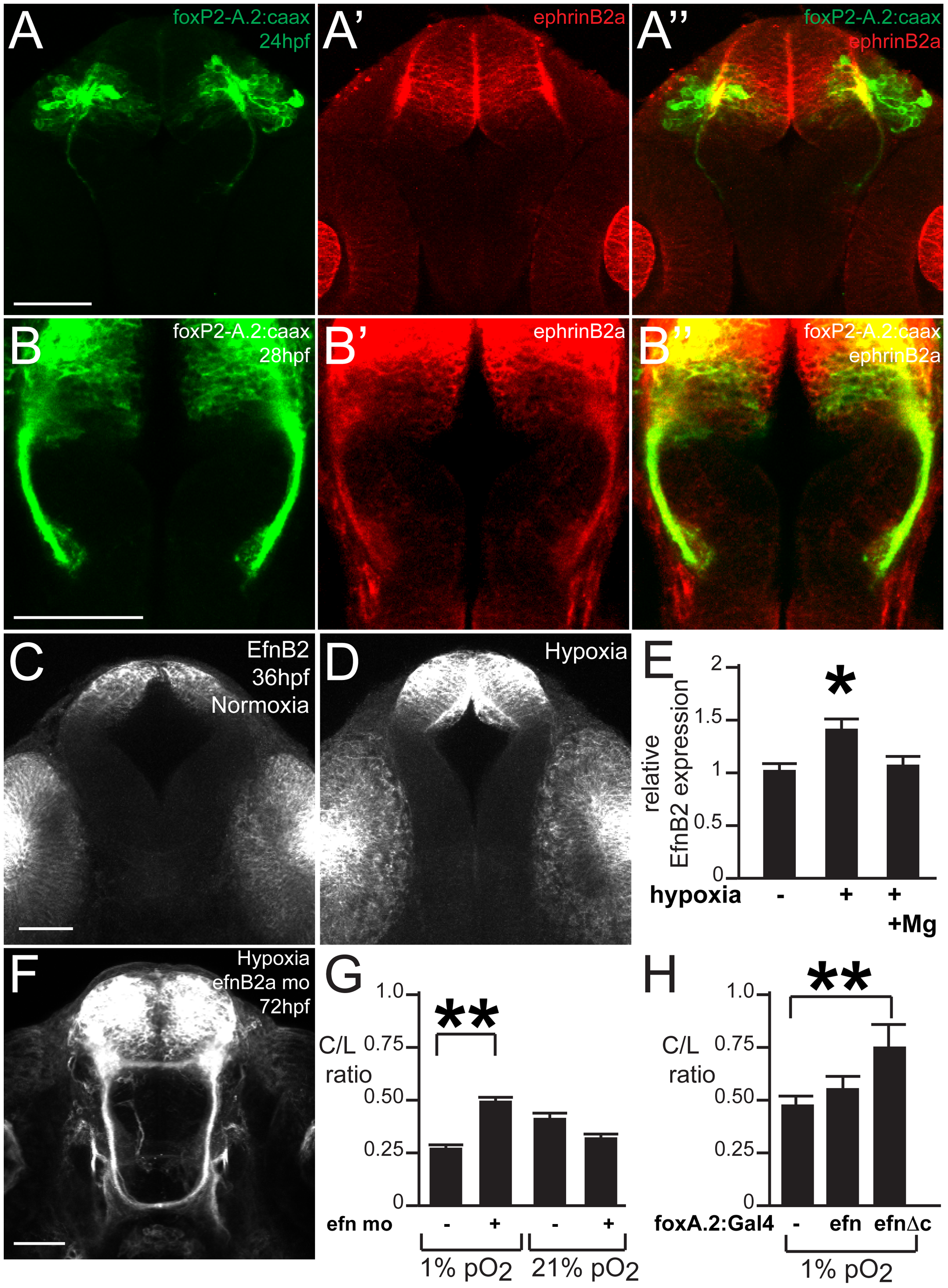 ephrinB2a mediates the hypoxia-induced TCPT pathfinding errors.