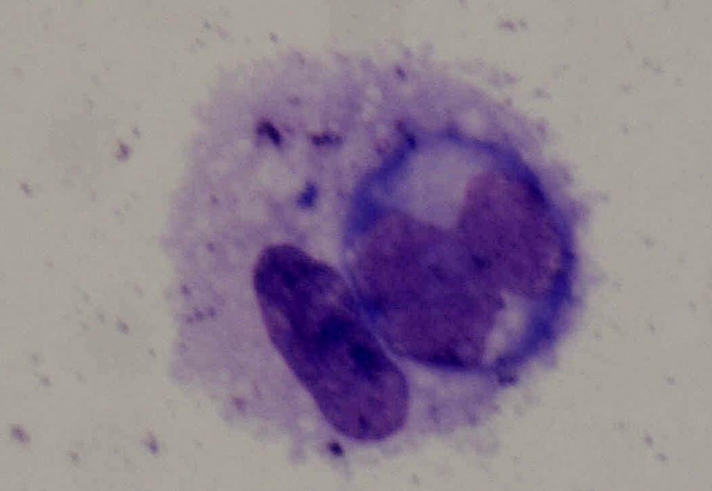 Atypický lymfocyt zachycený ze sklivce 68leté pacientky s non-Hodgkinským lymfomem CNS a oka