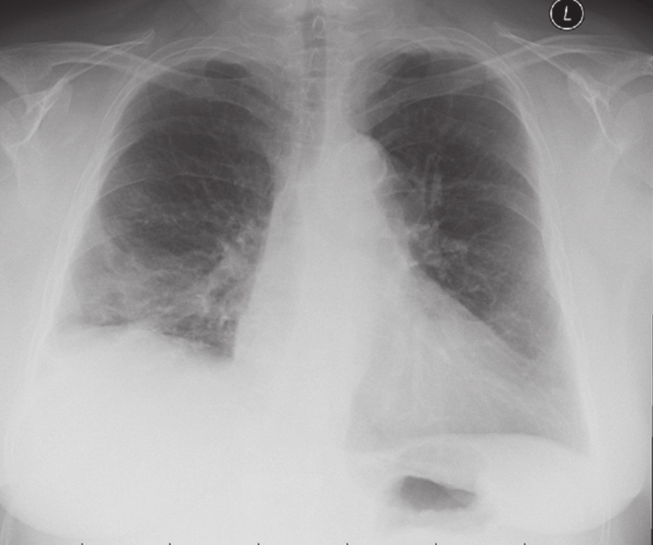 RTG po retransplantaci