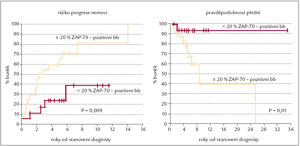 Kaplan-Meierova křivka přežití v závislosti na expresi znaku ZAP-70 [38].