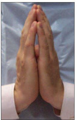 Znamení modlitby testující rozsah pohybu v drobných kloubech ruky – patologický nález.