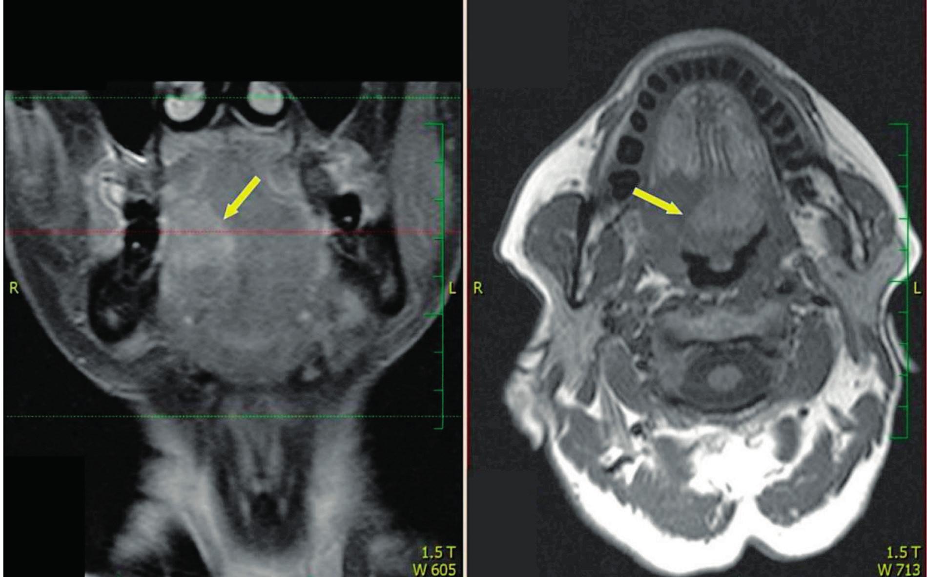 Vlevo MR T2 s potlačením signálu, vpravo MR T1 - šipka ukazuje na oblast invaze nádoru kořene jazyka do ústní spodiny se šířením přes střední čáru.